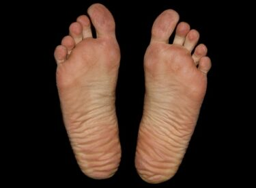 足のタコ(胼胝)やウオノメ(鶏眼)の治療